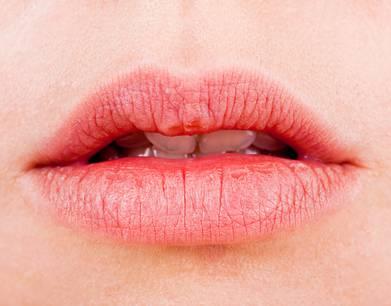Trocken Lippen